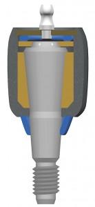 ball-joint-1-138x300
